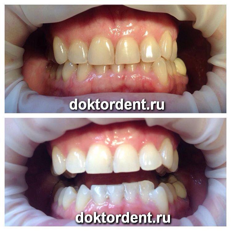 Безопасное отбеливание зубов отзывы