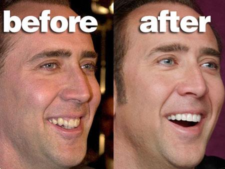 виниры на зубы больно ли